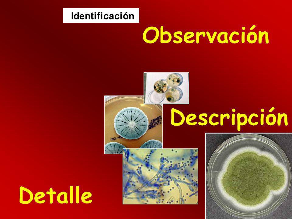 Observación Detalle Descripción Identificación