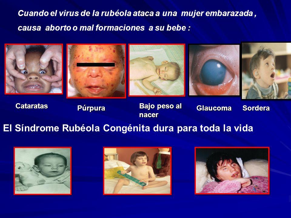 Cuando el virus de la rubéola ataca a una mujer embarazada, causa aborto o mal formaciones a su bebe : Púrpura Cataratas Bajo peso al nacer El Síndrom