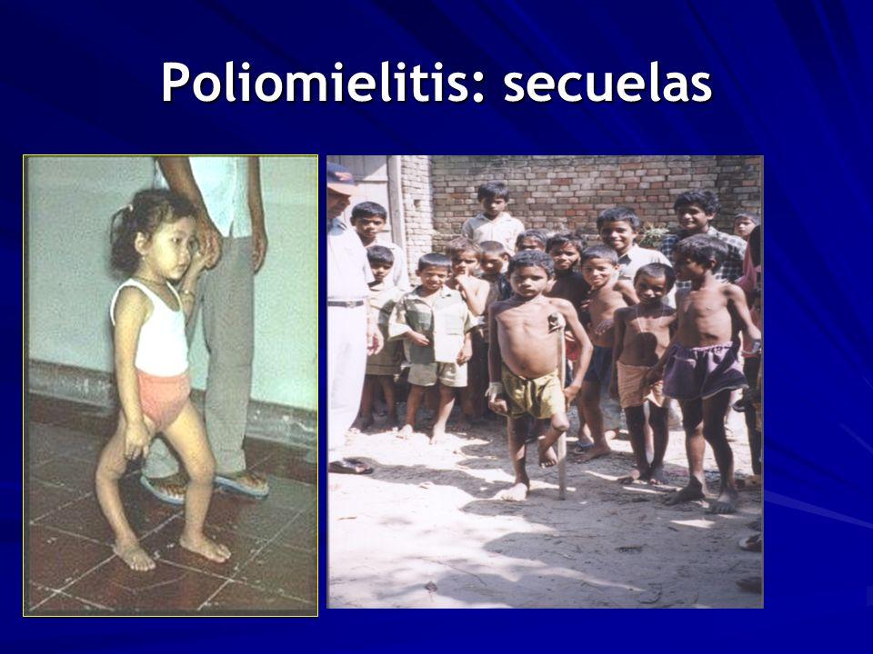 Poliomielitis: secuelas