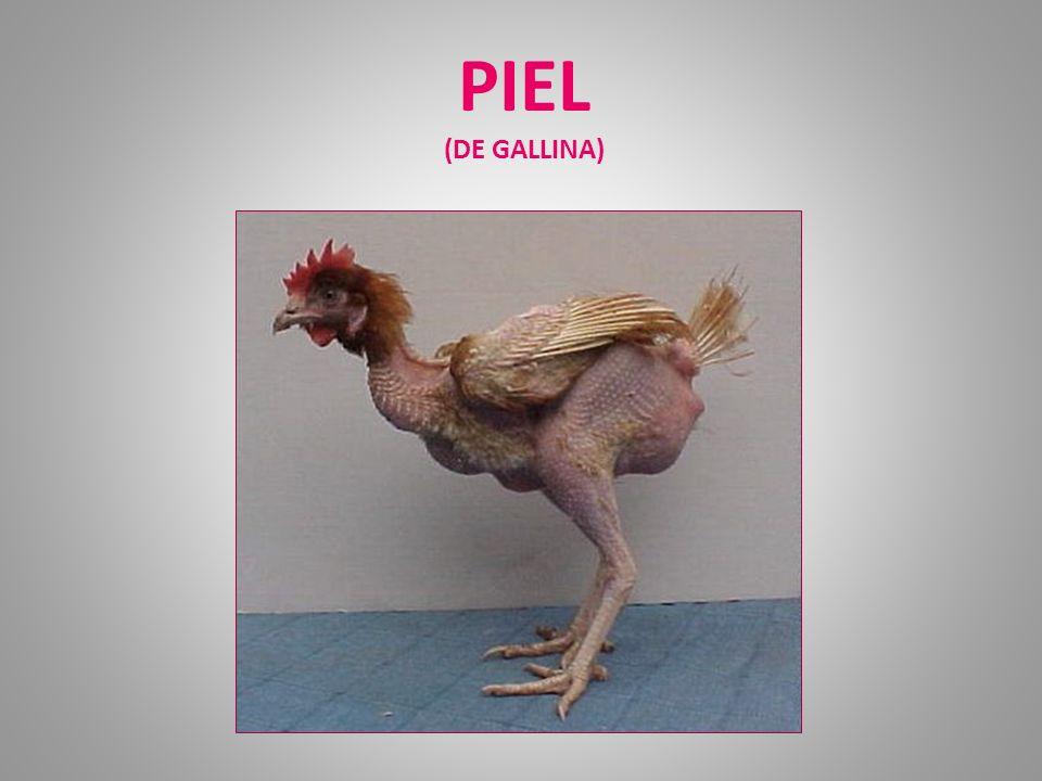 PIEL (DE GALLINA)