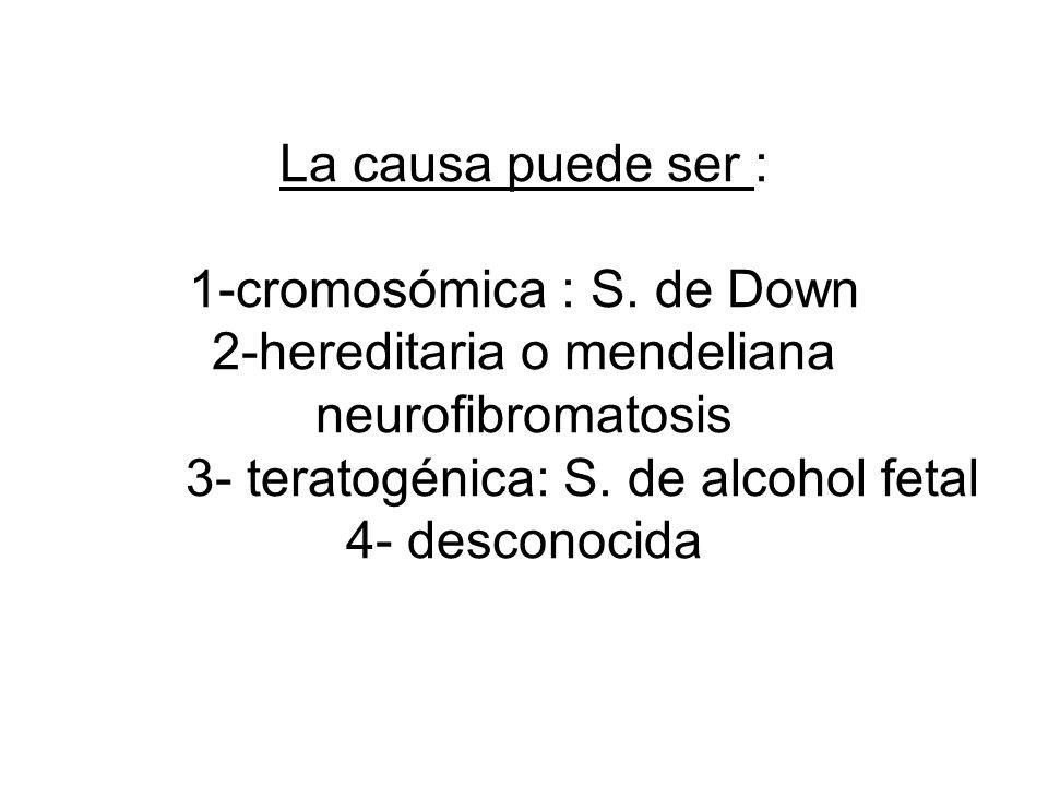 La causa puede ser : 1-cromosómica : S.