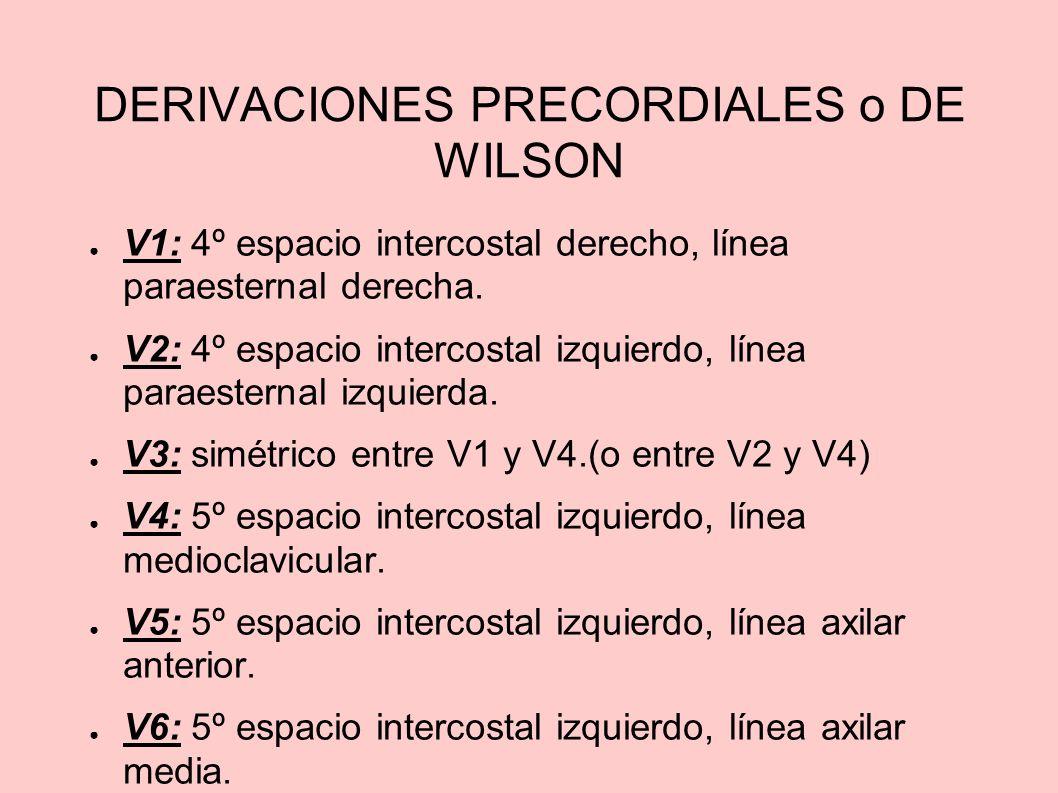 DERIVACIONES PRECORDIALES o DE WILSON V1: 4º espacio intercostal derecho, línea paraesternal derecha. V2: 4º espacio intercostal izquierdo, línea para