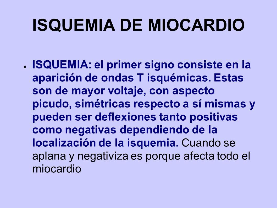 ISQUEMIA DE MIOCARDIO ISQUEMIA: el primer signo consiste en la aparición de ondas T isquémicas. Estas son de mayor voltaje, con aspecto picudo, simétr