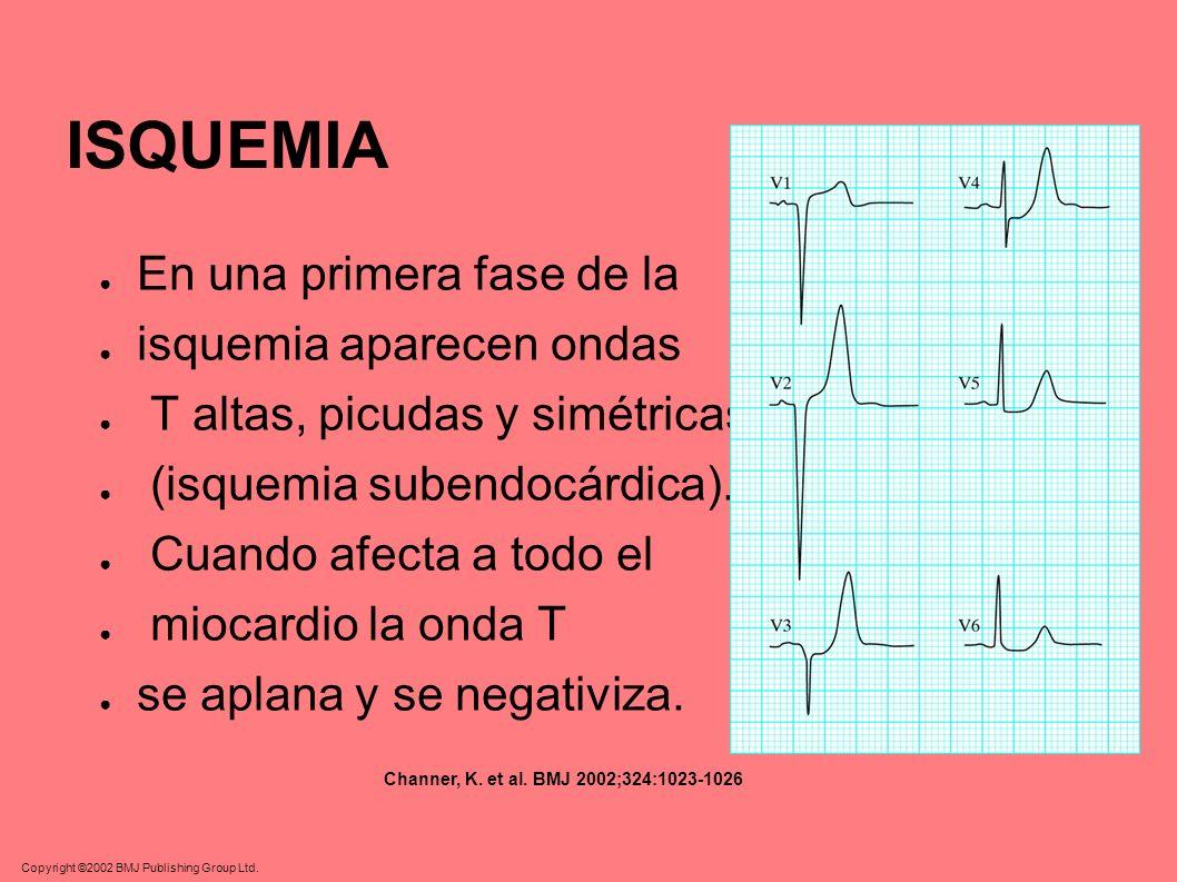 ISQUEMIA En una primera fase de la isquemia aparecen ondas T altas, picudas y simétricas (isquemia subendocárdica). Cuando afecta a todo el miocardio