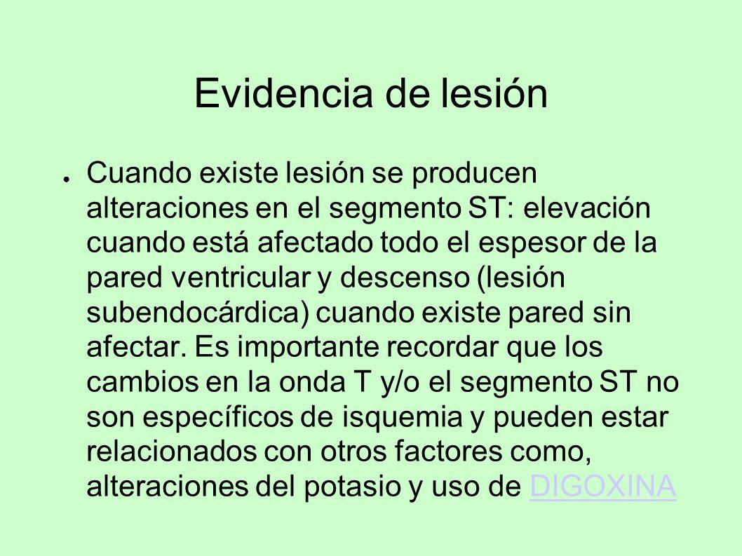 Evidencia de lesión Cuando existe lesión se producen alteraciones en el segmento ST: elevación cuando está afectado todo el espesor de la pared ventri