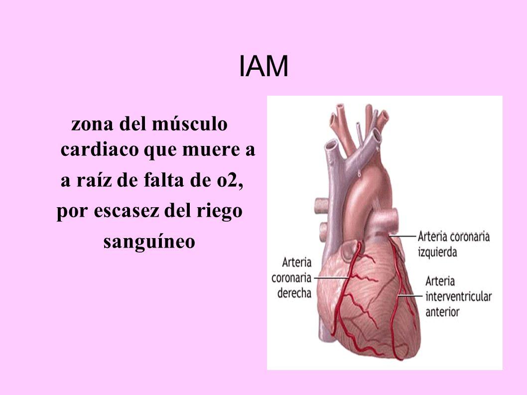 IAM zona del músculo cardiaco que muere a a raíz de falta de o2, por escasez del riego sanguíneo
