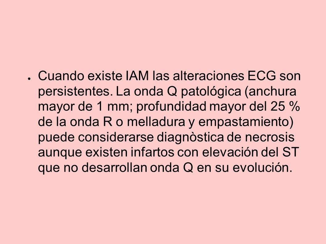Cuando existe IAM las alteraciones ECG son persistentes. La onda Q patológica (anchura mayor de 1 mm; profundidad mayor del 25 % de la onda R o mellad