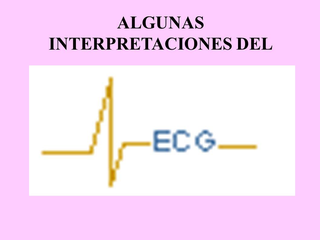 ALGUNAS INTERPRETACIONES DEL