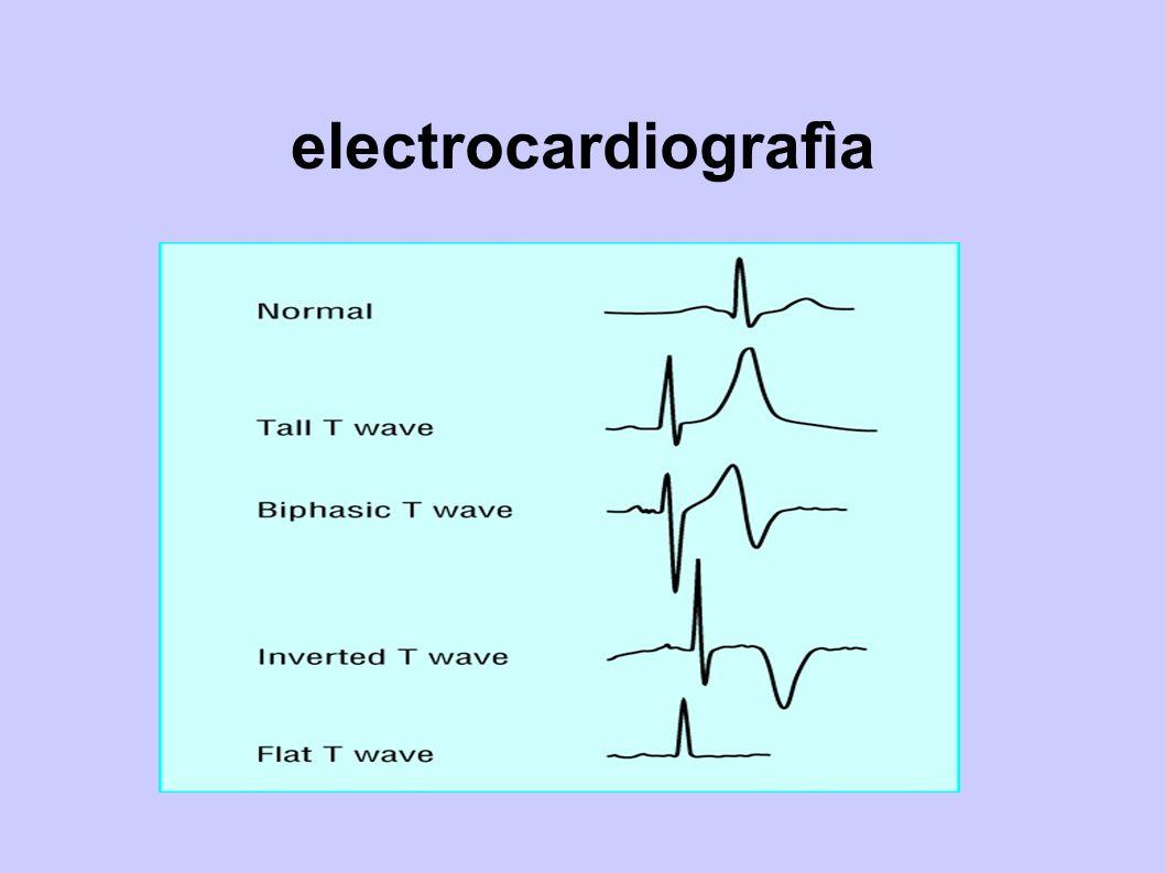 electrocardiografìa