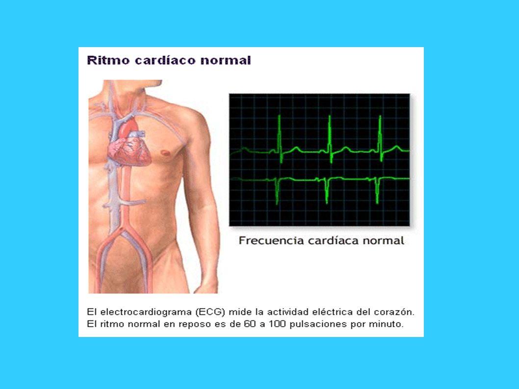 LESIÓN: la corriente de lesión miocárdica (que sucede a la isquemia) se traduce en la desviación del segmento ST hacia arriba o hacia abajo.