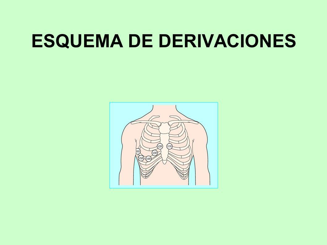Evidencia de lesión Cuando existe lesión se producen alteraciones en el segmento ST: elevación cuando está afectado todo el espesor de la pared ventricular y descenso (lesión subendocárdica) cuando existe pared sin afectar.