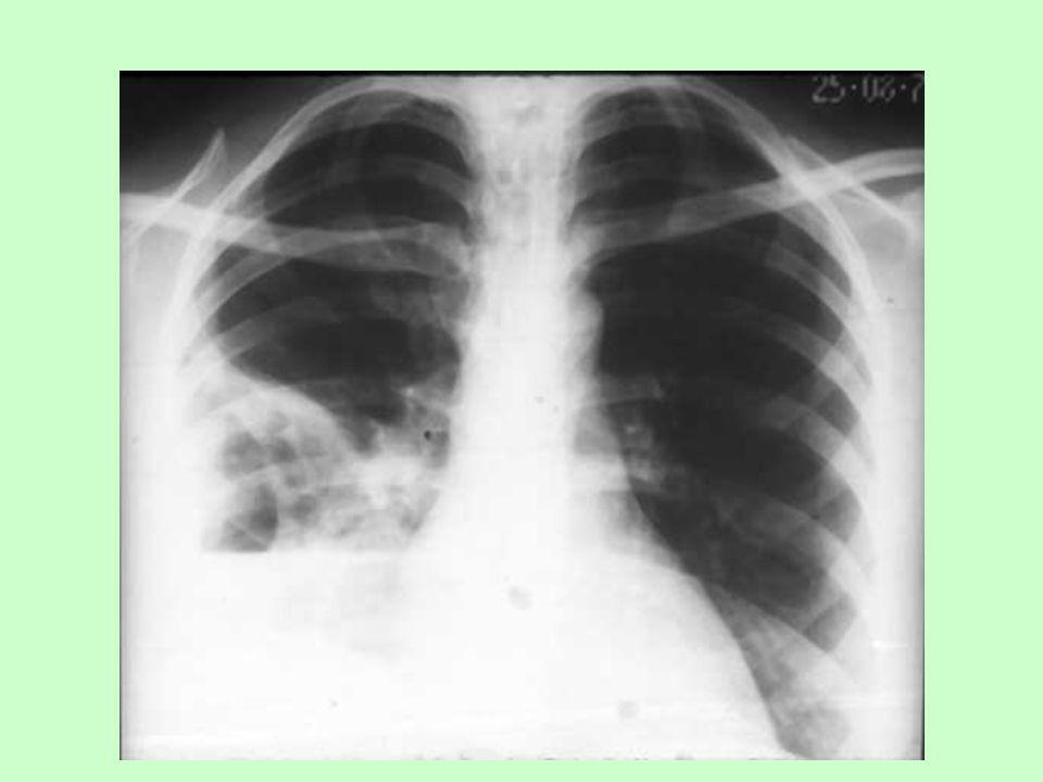 Ocupación alveolar Los alvéolos, llenos normalmente con aire, son reemplazados por exudado, líquidos, tejido neoplásico Colapso alveolar Atelectasia: por obstrucción total de la vía aérea compresión por tumores, deformaciones torácicas, cardiomegalias, neumotórax o derrames pleurales