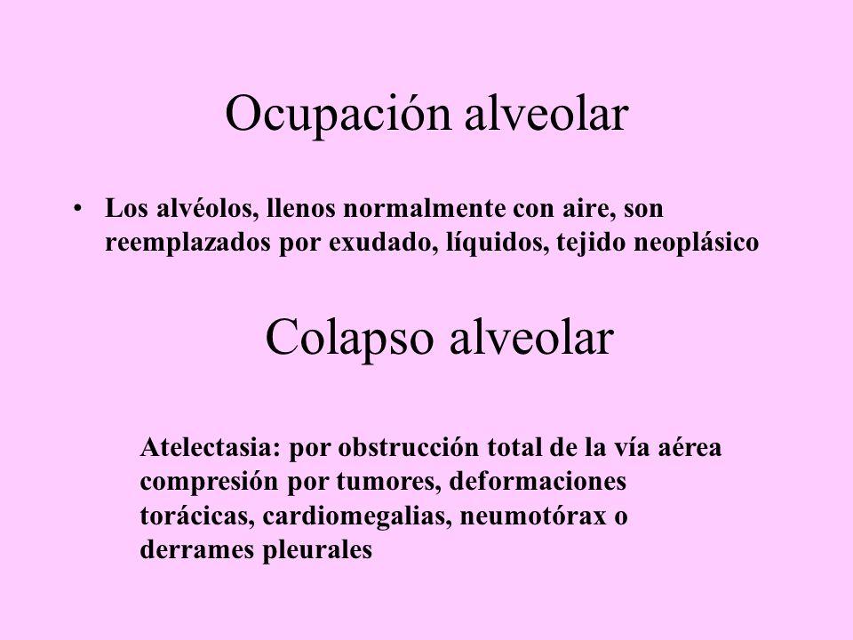 Ocupación alveolar Los alvéolos, llenos normalmente con aire, son reemplazados por exudado, líquidos, tejido neoplásico Colapso alveolar Atelectasia: