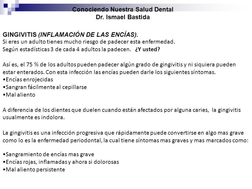 Conociendo Nuestra Salud Dental Dr. Ismael Bastida GINGIVITIS (INFLAMACIÓN DE LAS ENCÍAS). Si eres un adulto tienes mucho riesgo de padecer esta enfer