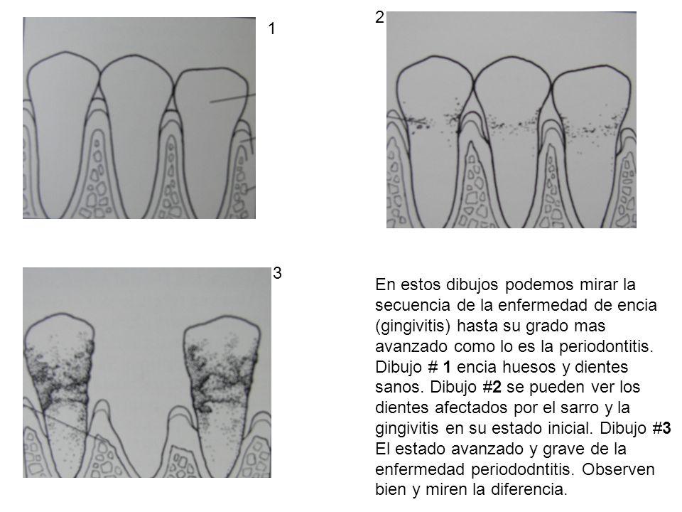 1 2 3 En estos dibujos podemos mirar la secuencia de la enfermedad de encia (gingivitis) hasta su grado mas avanzado como lo es la periodontitis. Dibu