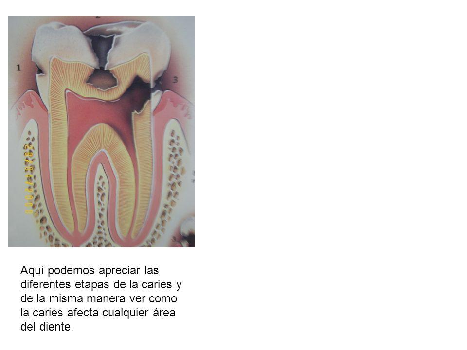 Aquí podemos apreciar las diferentes etapas de la caries y de la misma manera ver como la caries afecta cualquier área del diente.