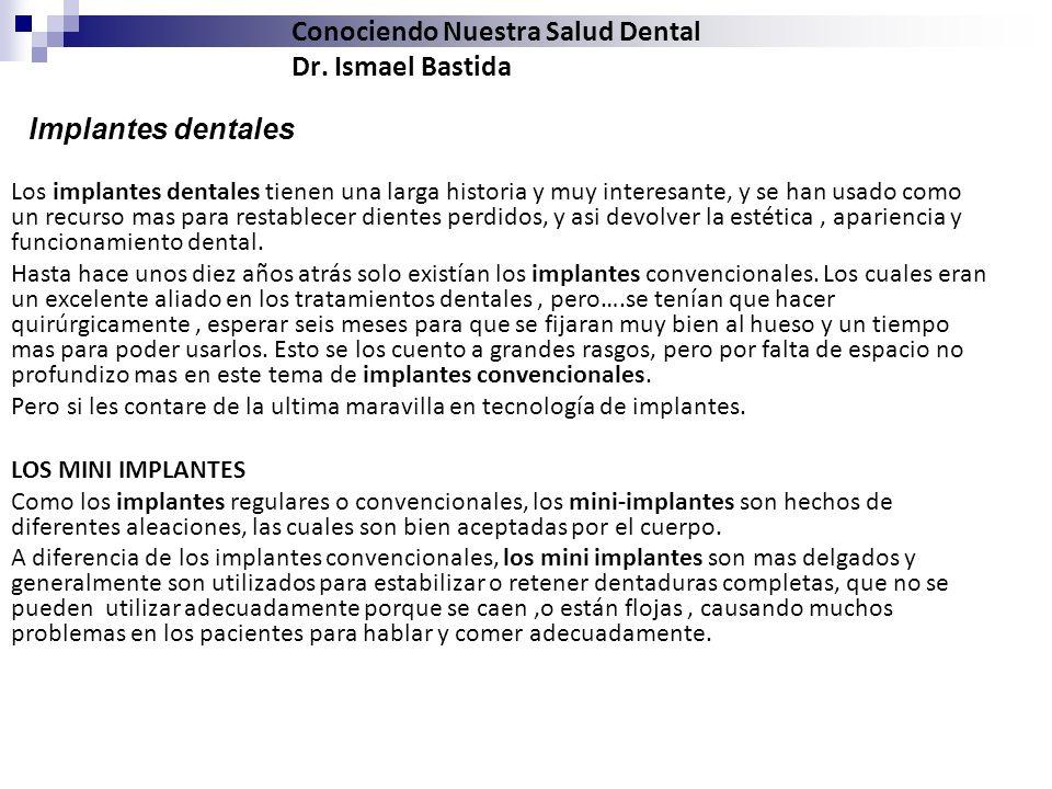 Conociendo Nuestra Salud Dental Dr. Ismael Bastida Los implantes dentales tienen una larga historia y muy interesante, y se han usado como un recurso