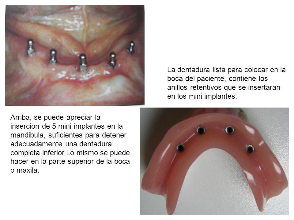 Arriba, se puede apreciar la insercion de 5 mini implantes en la mandibula, suficientes para detener adecuadamente una dentadura completa inferior.Lo