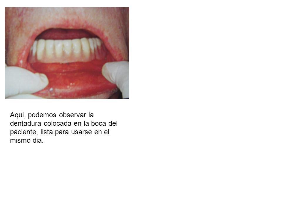 Aqui, podemos observar la dentadura colocada en la boca del paciente, lista para usarse en el mismo dia.