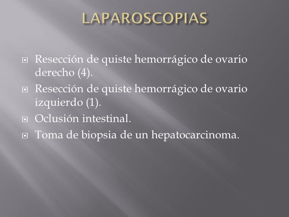 Resección de quiste hemorrágico de ovario derecho (4). Resección de quiste hemorrágico de ovario izquierdo (1). Oclusión intestinal. Toma de biopsia d