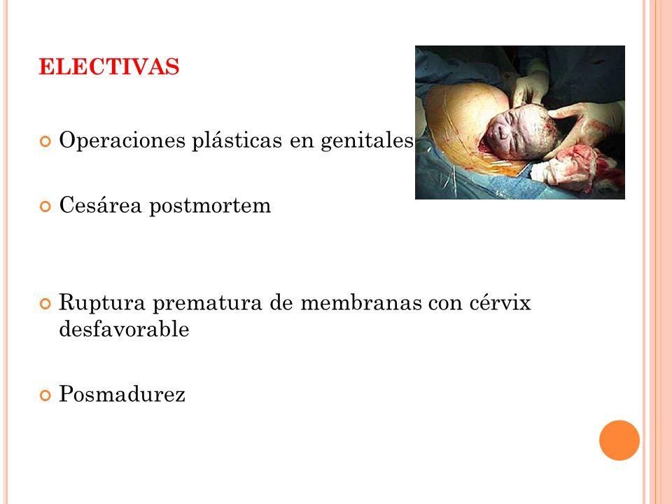 ELECTIVAS Operaciones plásticas en genitales Cesárea postmortem Ruptura prematura de membranas con cérvix desfavorable Posmadurez