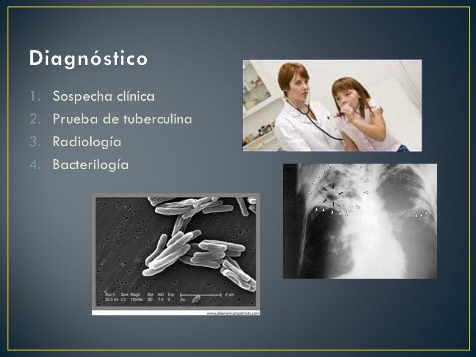 1.Sospecha clínica 2.Prueba de tuberculina 3.Radiología 4.Bacterilogía
