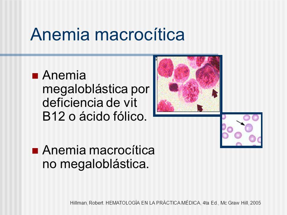 Anemia megaloblástica por deficiencia de vit B12 o ácido fólico. Anemia macrocítica no megaloblástica. Anemia macrocítica Hillman, Robert. HEMATOLOGÍA