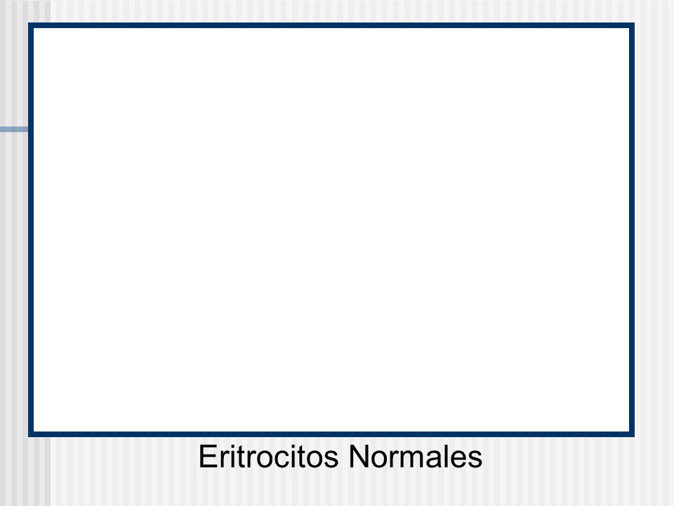 Eritrocitos Normales