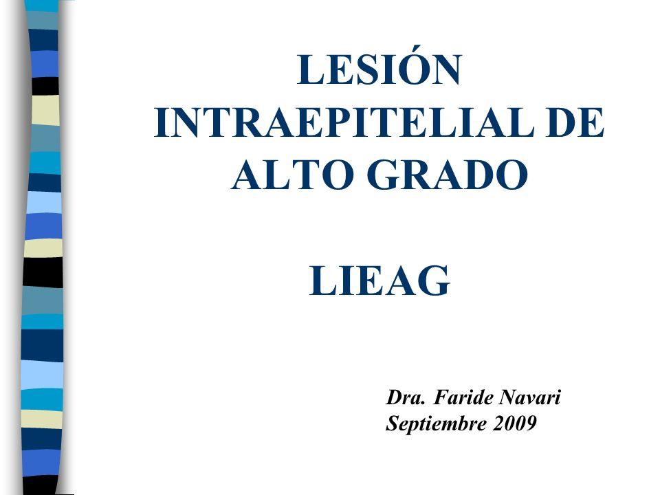LIEAG CONCEPTOS –Neoplasia cervical intraepitelial Lesión que puede progresar hasta Ca invasivo.