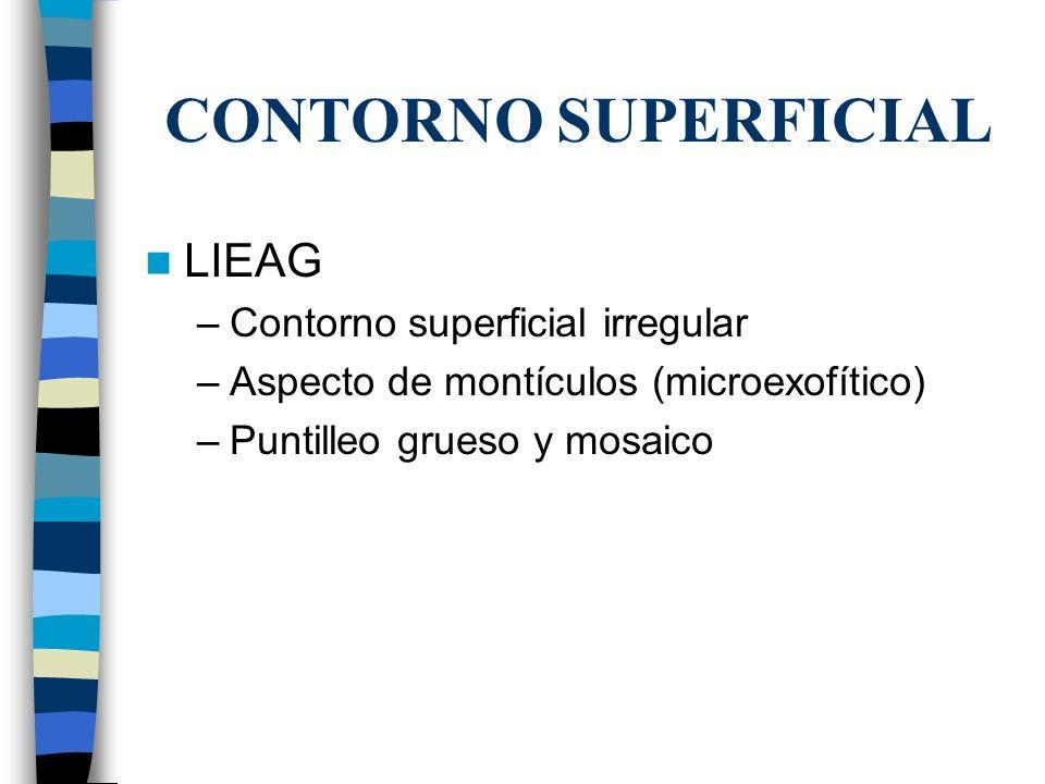 CONTORNO SUPERFICIAL LIEAG –Contorno superficial irregular –Aspecto de montículos (microexofítico) –Puntilleo grueso y mosaico