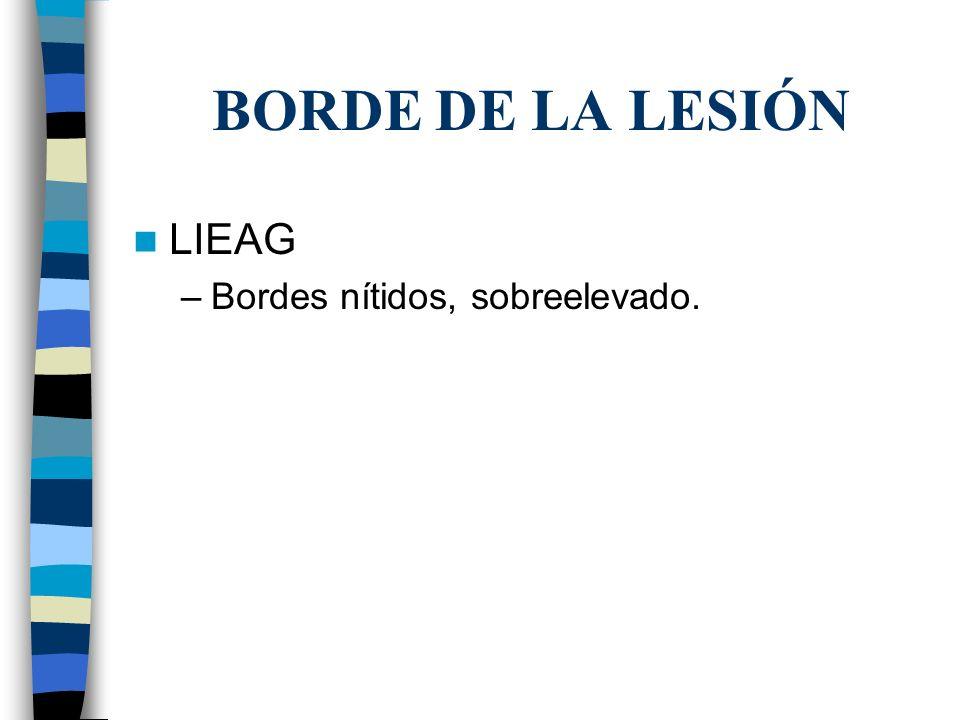 BORDE DE LA LESIÓN LIEAG –Bordes nítidos, sobreelevado.
