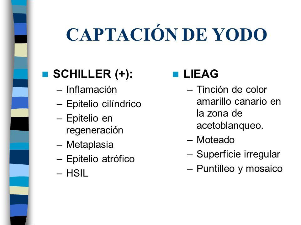 CAPTACIÓN DE YODO SCHILLER (+): –Inflamación –Epitelio cilíndrico –Epitelio en regeneración –Metaplasia –Epitelio atrófico –HSIL LIEAG –Tinción de col