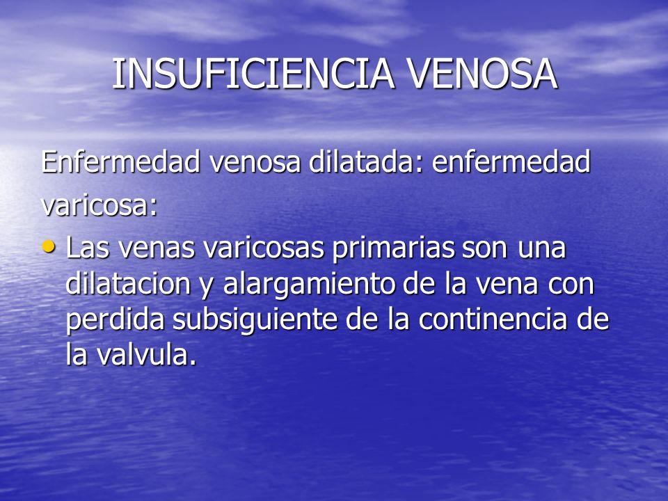 INSUFICIENCIA VENOSA Enfermedad venosa dilatada: enfermedad varicosa: Las venas varicosas primarias son una dilatacion y alargamiento de la vena con p