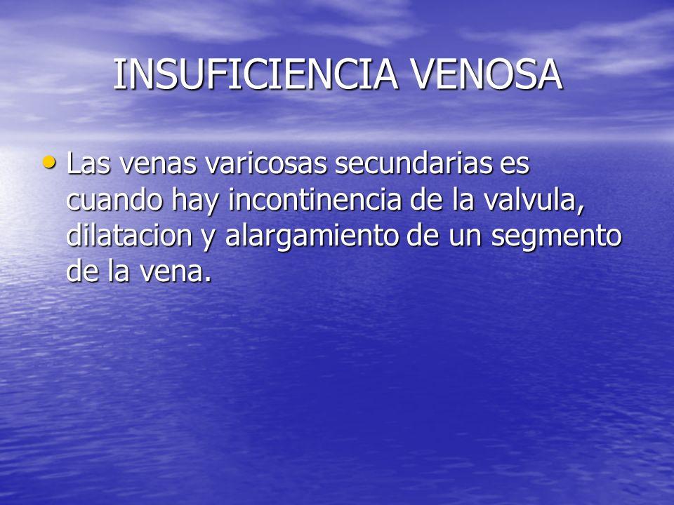 INSUFICIENCIA VENOSA Las venas varicosas secundarias es cuando hay incontinencia de la valvula, dilatacion y alargamiento de un segmento de la vena. L