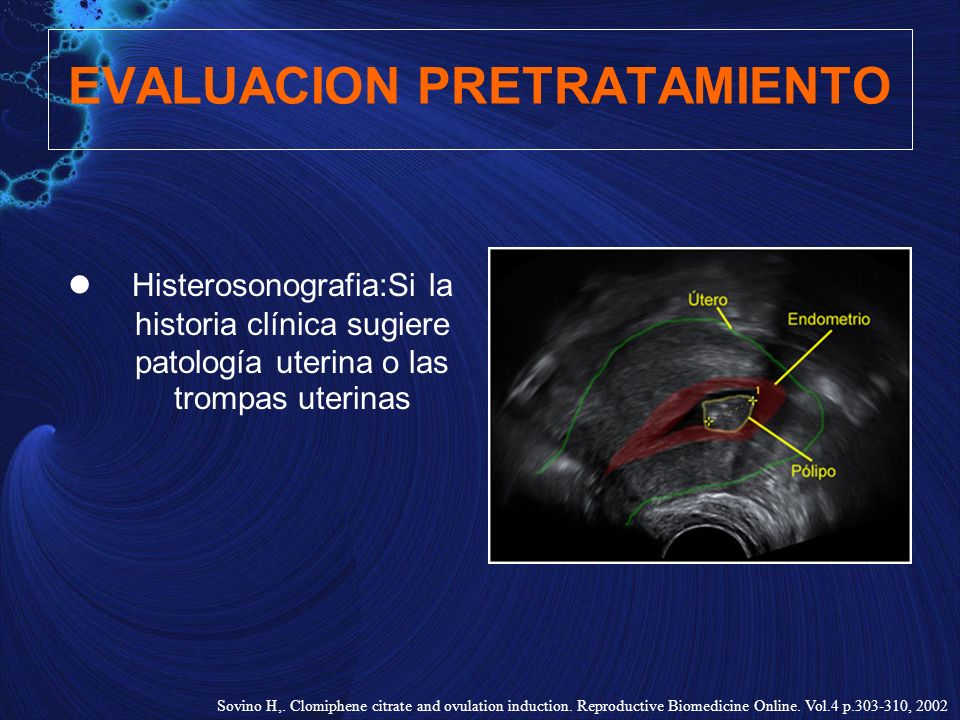 EVALUACION PRETRATAMIENTO Histerosonografia:Si la historia clínica sugiere patología uterina o las trompas uterinas Sovino H,. Clomiphene citrate and