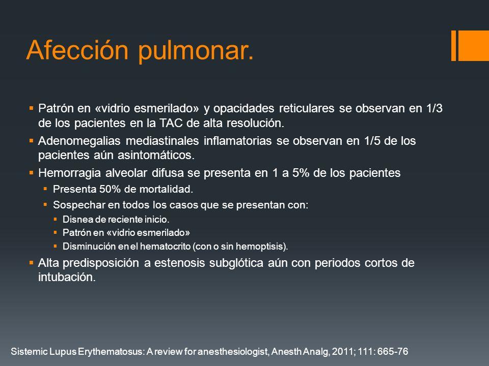 Afección pulmonar. Patrón en «vidrio esmerilado» y opacidades reticulares se observan en 1/3 de los pacientes en la TAC de alta resolución. Adenomegal