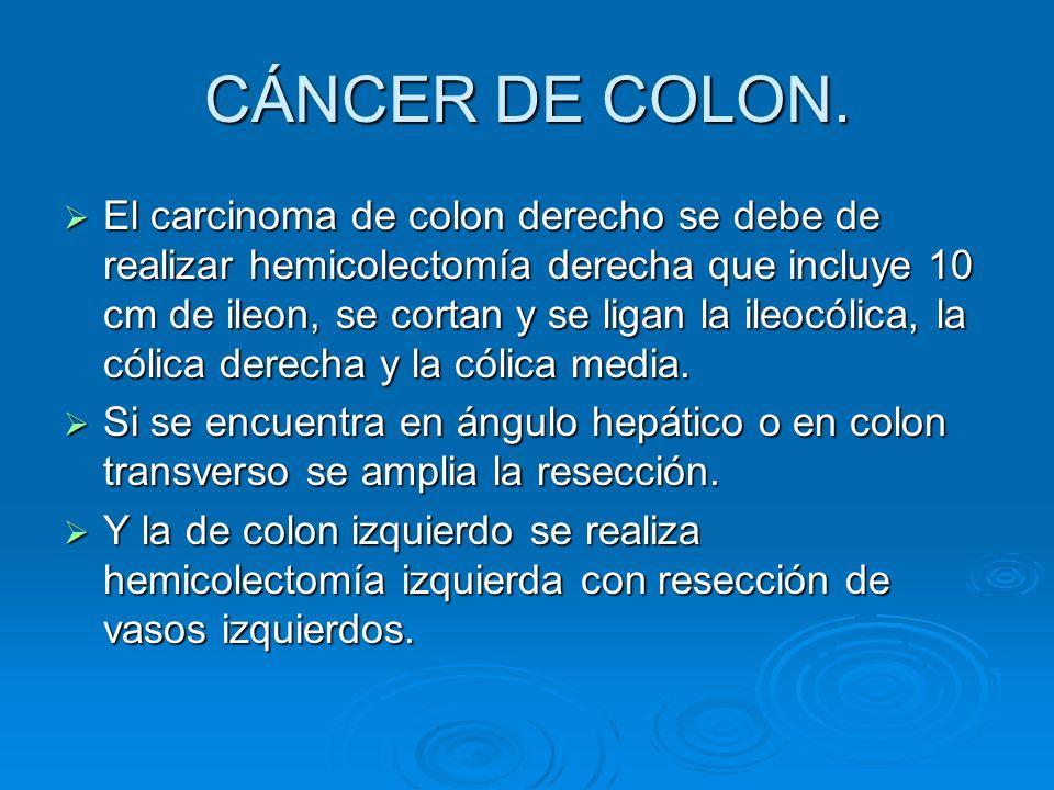 CÁNCER DE COLON. El carcinoma de colon derecho se debe de realizar hemicolectomía derecha que incluye 10 cm de ileon, se cortan y se ligan la ileocóli