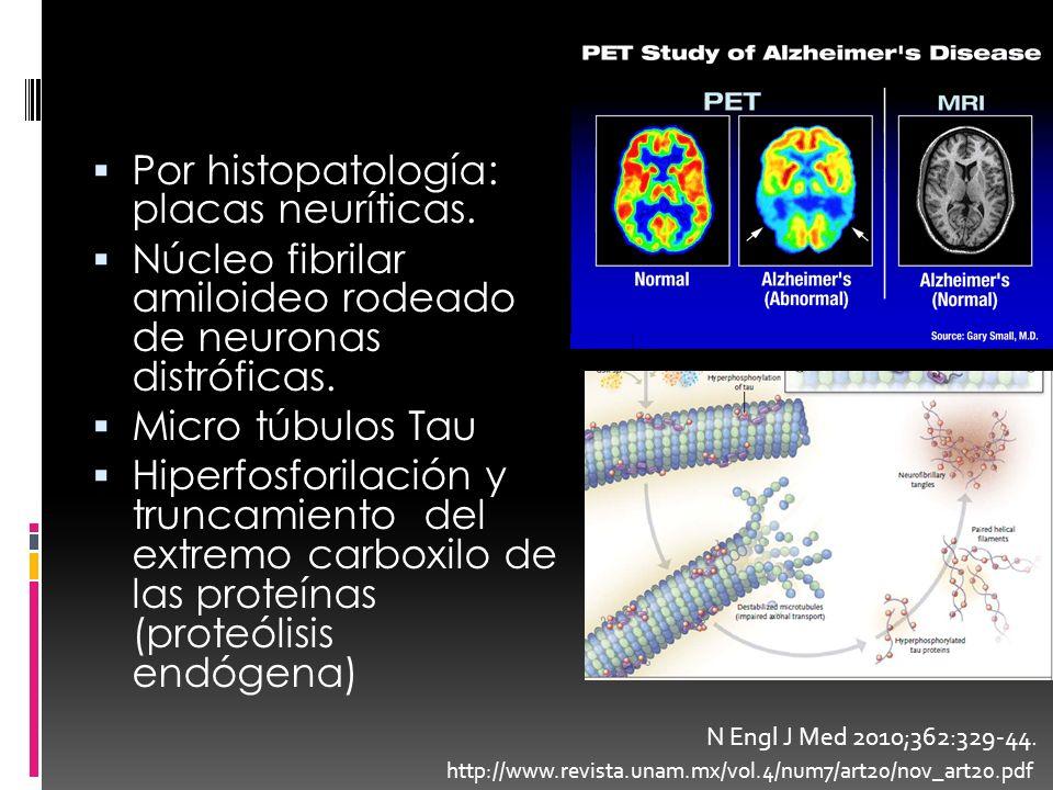 Por histopatología: placas neuríticas. Núcleo fibrilar amiloideo rodeado de neuronas distróficas. Micro túbulos Tau Hiperfosforilación y truncamiento