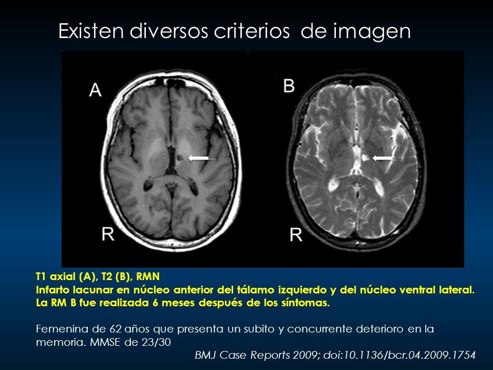 Existen diversos criterios de imagen T1 axial (A), T2 (B), RMN Infarto lacunar en núcleo anterior del tálamo izquierdo y del núcleo ventral lateral. L