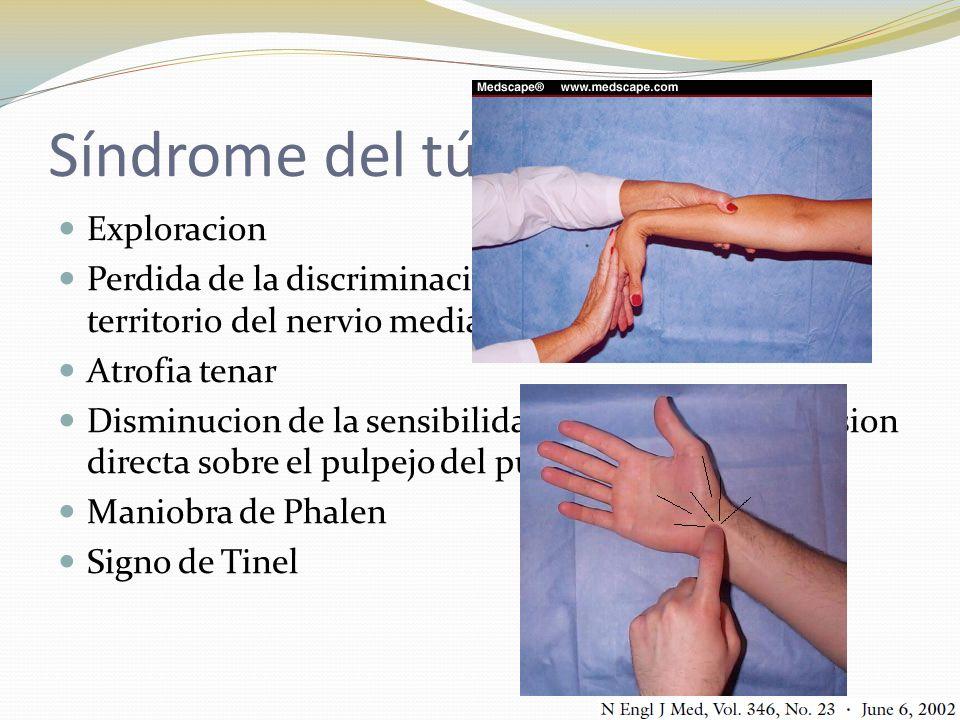 Síndrome del túnel del carpo Exploracion Perdida de la discriminacion de dos puntos en territorio del nervio mediano Atrofia tenar Disminucion de la s