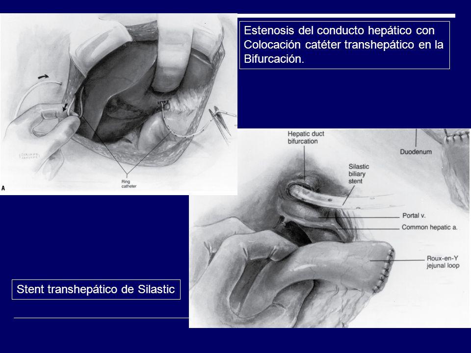 Estenosis del conducto hepático con Colocación catéter transhepático en la Bifurcación. Stent transhepático de Silastic