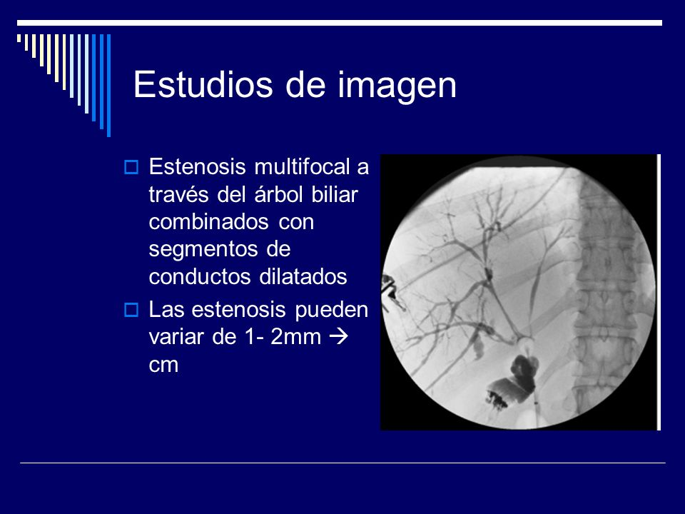 Estudios de imagen Estenosis multifocal a través del árbol biliar combinados con segmentos de conductos dilatados Las estenosis pueden variar de 1- 2m
