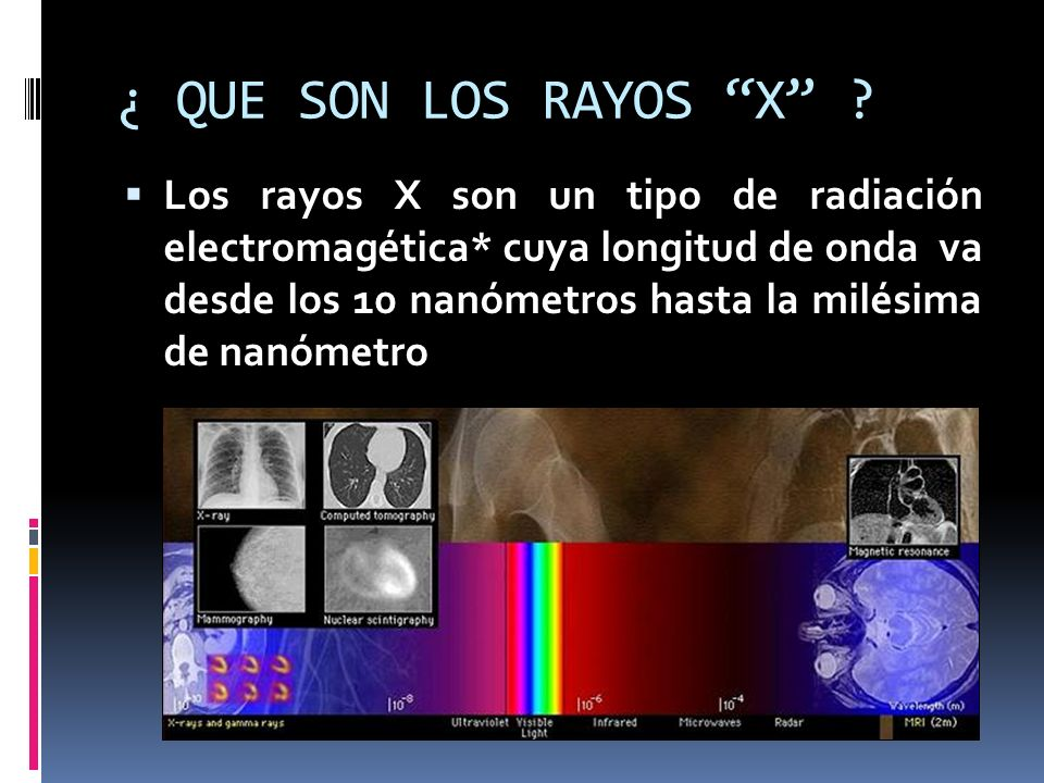 ¿ QUE SON LOS RAYOS X ? Los rayos X son un tipo de radiación electromagética* cuya longitud de onda va desde los 10 nanómetros hasta la milésima de na