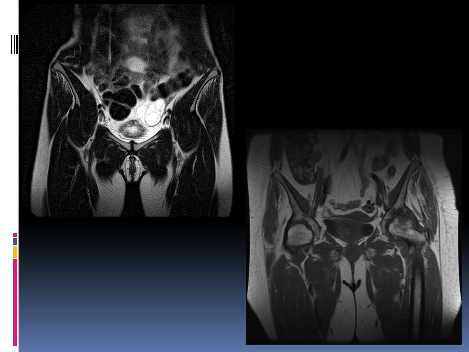 RM Sagital en D.P que muestra ruptura Del Ligamento Cruzado anterior RM Sagital en T2 que muestra imagen Lineal de cuerno posterior del menisco Interno en comunicación con la superficie articular QUISTE SINOVIAL