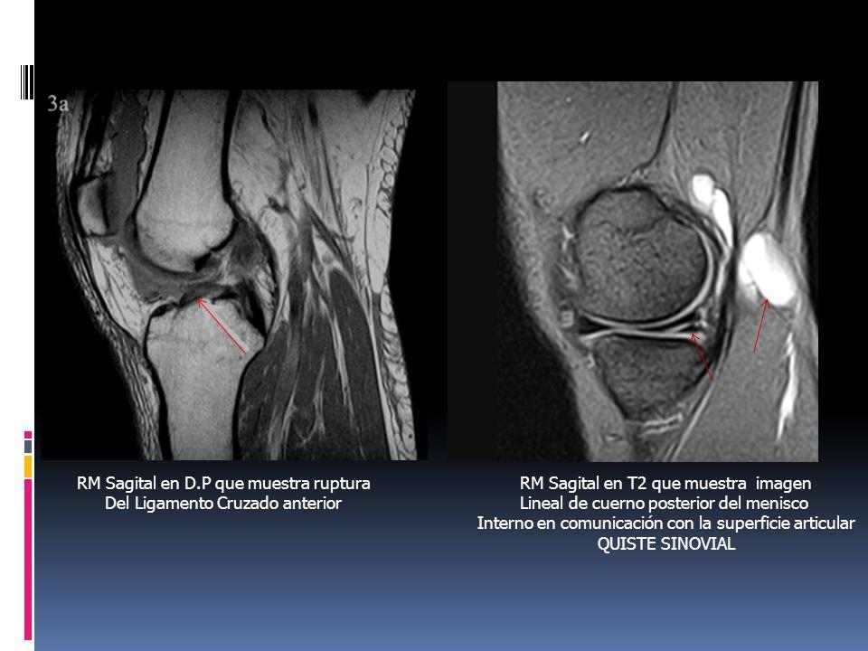 RM Sagital en D.P que muestra ruptura Del Ligamento Cruzado anterior RM Sagital en T2 que muestra imagen Lineal de cuerno posterior del menisco Intern