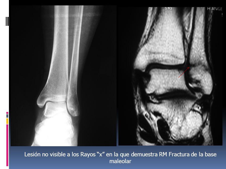 Lesión no visible a los Rayos x en la que demuestra RM Fractura de la base maleolar