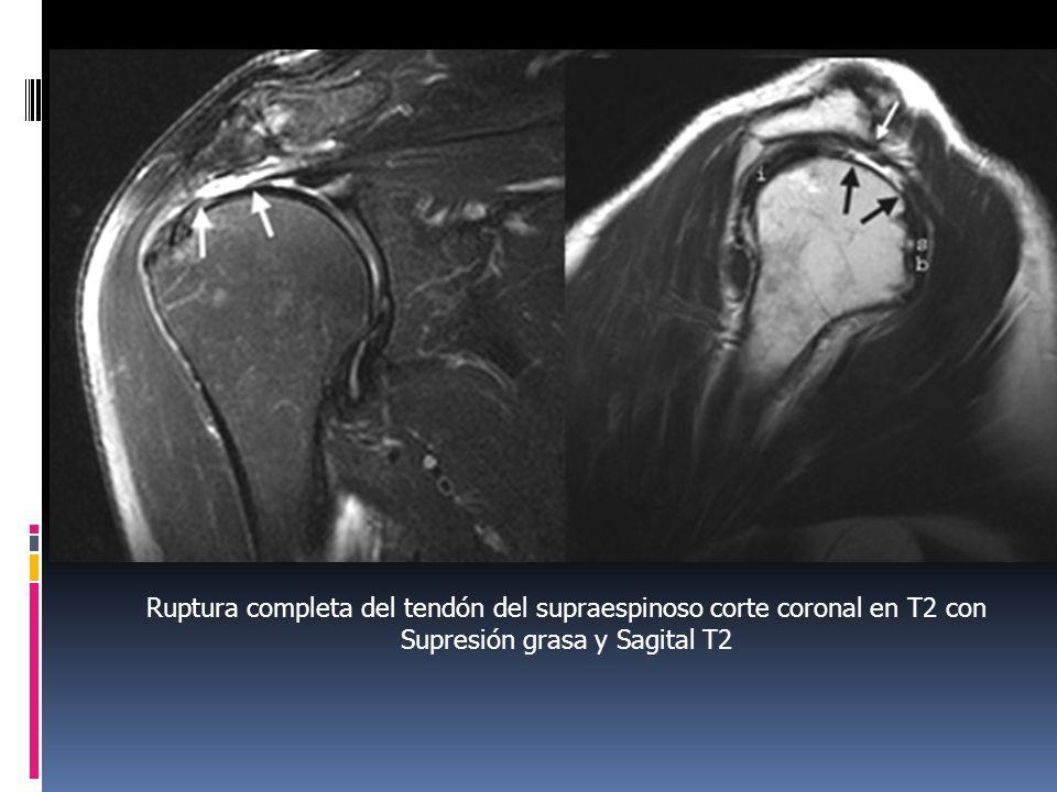 Ruptura completa del tendón del supraespinoso corte coronal en T2 con Supresión grasa y Sagital T2
