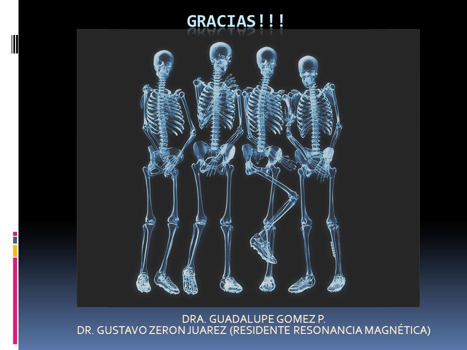 DRA. GUADALUPE GOMEZ P. DR. GUSTAVO ZERON JUAREZ (RESIDENTE RESONANCIA MAGNÉTICA)