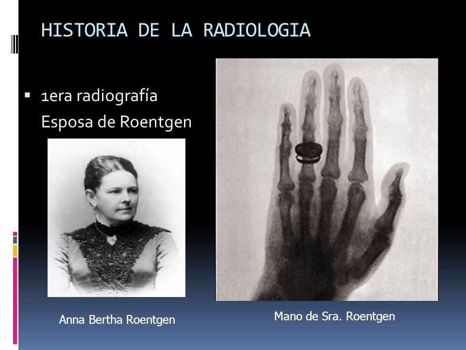 HISTORIA DE LA RADIOLOGIA 1era radiografía Esposa de Roentgen Anna Bertha Roentgen Mano de Sra. Roentgen