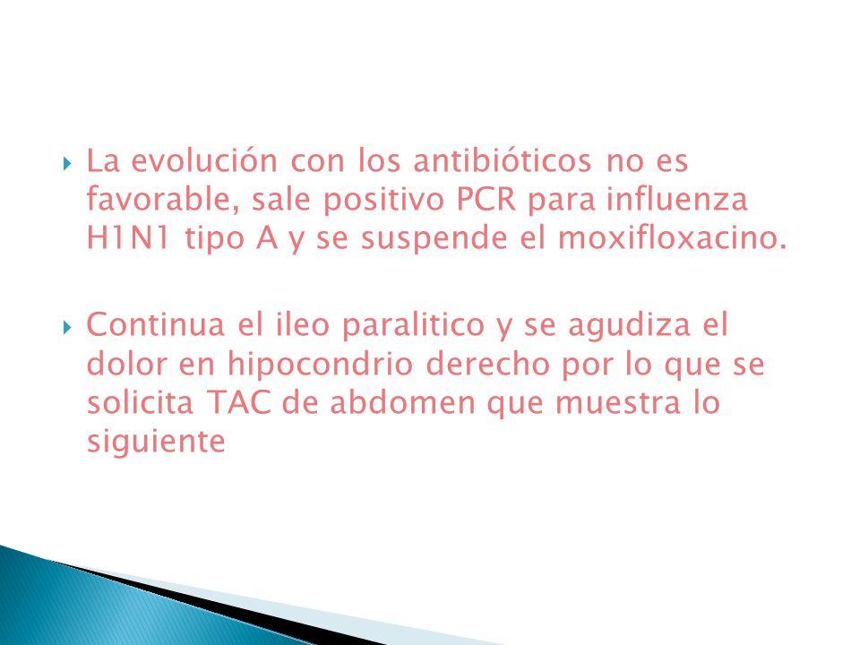 La evolución con los antibióticos no es favorable, sale positivo PCR para influenza H1N1 tipo A y se suspende el moxifloxacino. Continua el ileo paral